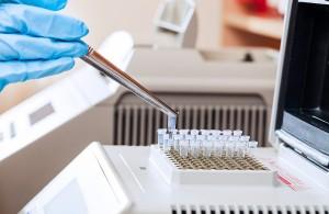Создан электронный чип для быстрого определения возбудителей инфекции