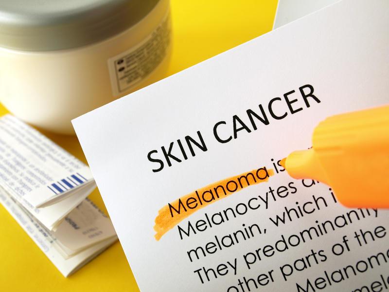 Для выявления и анализа меланомы могут быть использованы выделяемые ей летучие органические вещества