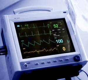 Моделирование неидеального биения сердца