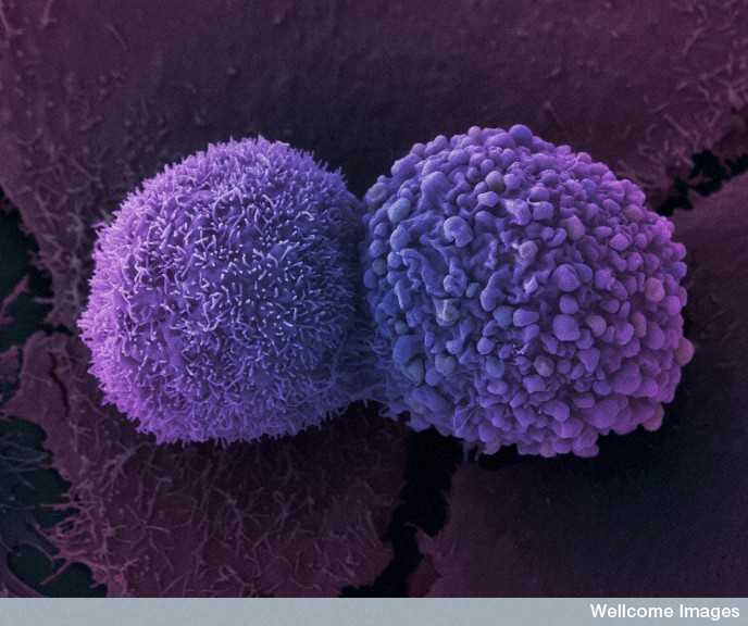 B0007782 Lung cancer cells