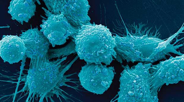 Расширены представления о сигнальных путях, имеющих место в клетках раковых опухолей